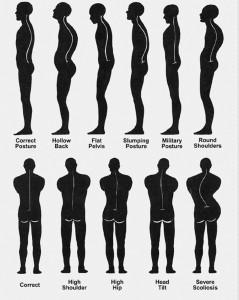 misc. posture